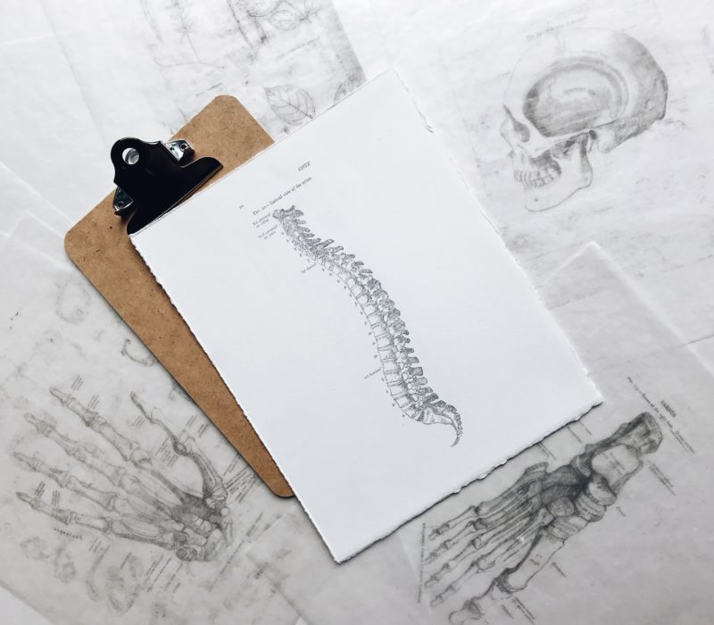 A new technology created by Nexus Ventures could drastically change spine implant surgery. Here is how.